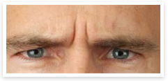 eyebrow lift botox before