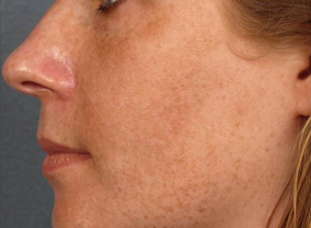 photofacial treatment before photo
