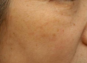 photofacial skin treatment