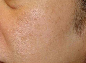 photofacial ipl treatment before