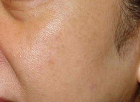 photofacial ipl treatment after
