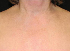 photofacial before pictures