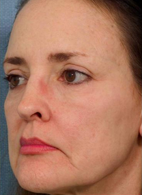 ipl photofacial after