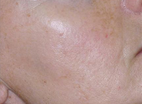 ipl photofacial treatment after result