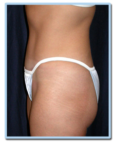 weight loss after smart lipo