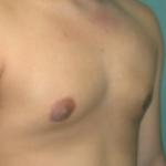 smart lipo recovery