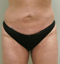 smart lipo abs after