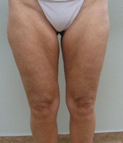 without smart lipo laser