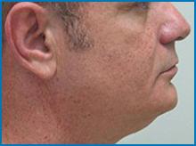 smart lipo procedure