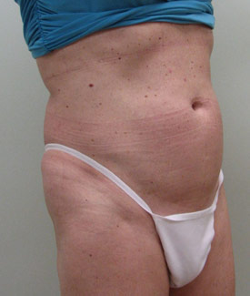 smart lipo weight loss