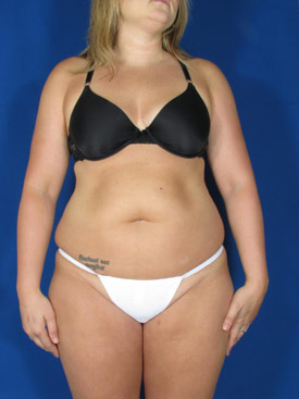 smart lipo in new york