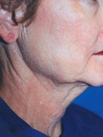 Titan Laser Before neck