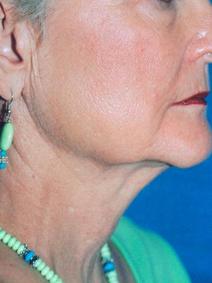 Titan Laser After neck