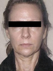 Titan Laser Before face and neck