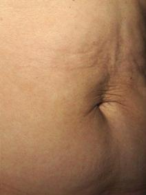 Titan before image
