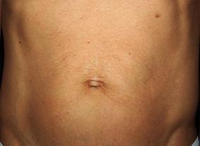 titan skin tightening after treatment