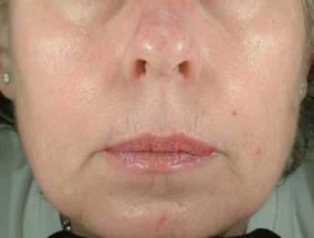 titan for skin tightening after