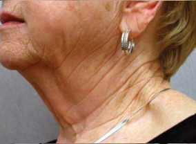 titan laser skin tightening before