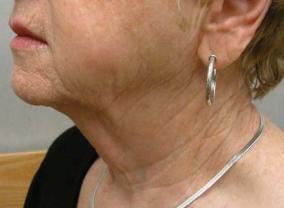titan laser skin tightening after