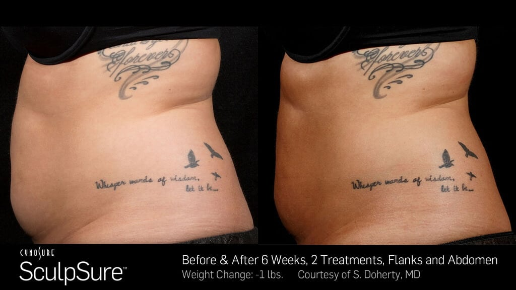 ba_sculpsure_sbs_doherty_2tx_6wks