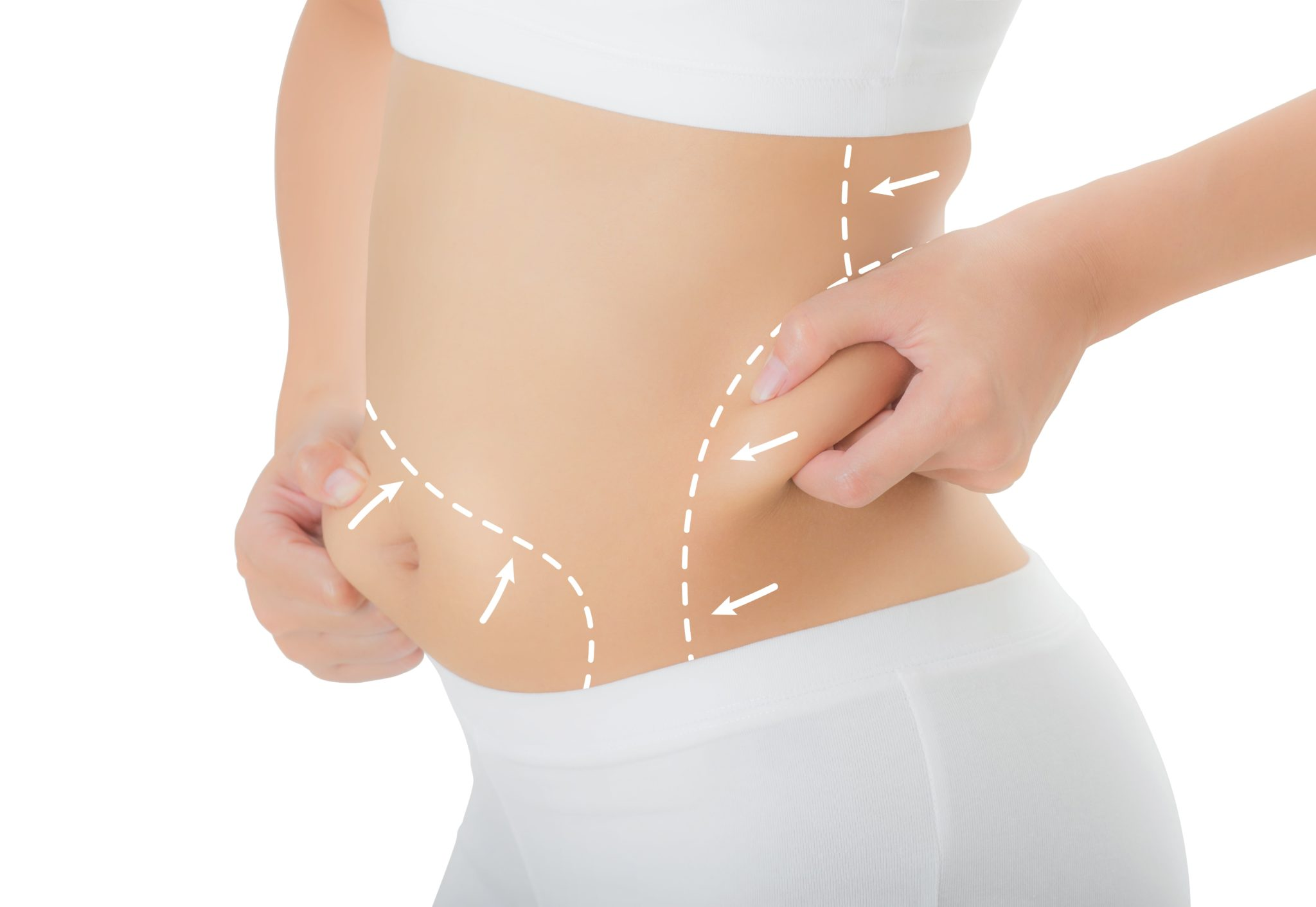 How Zerona Laser Is An Effective Treatment to Get Rid of Excess Fat