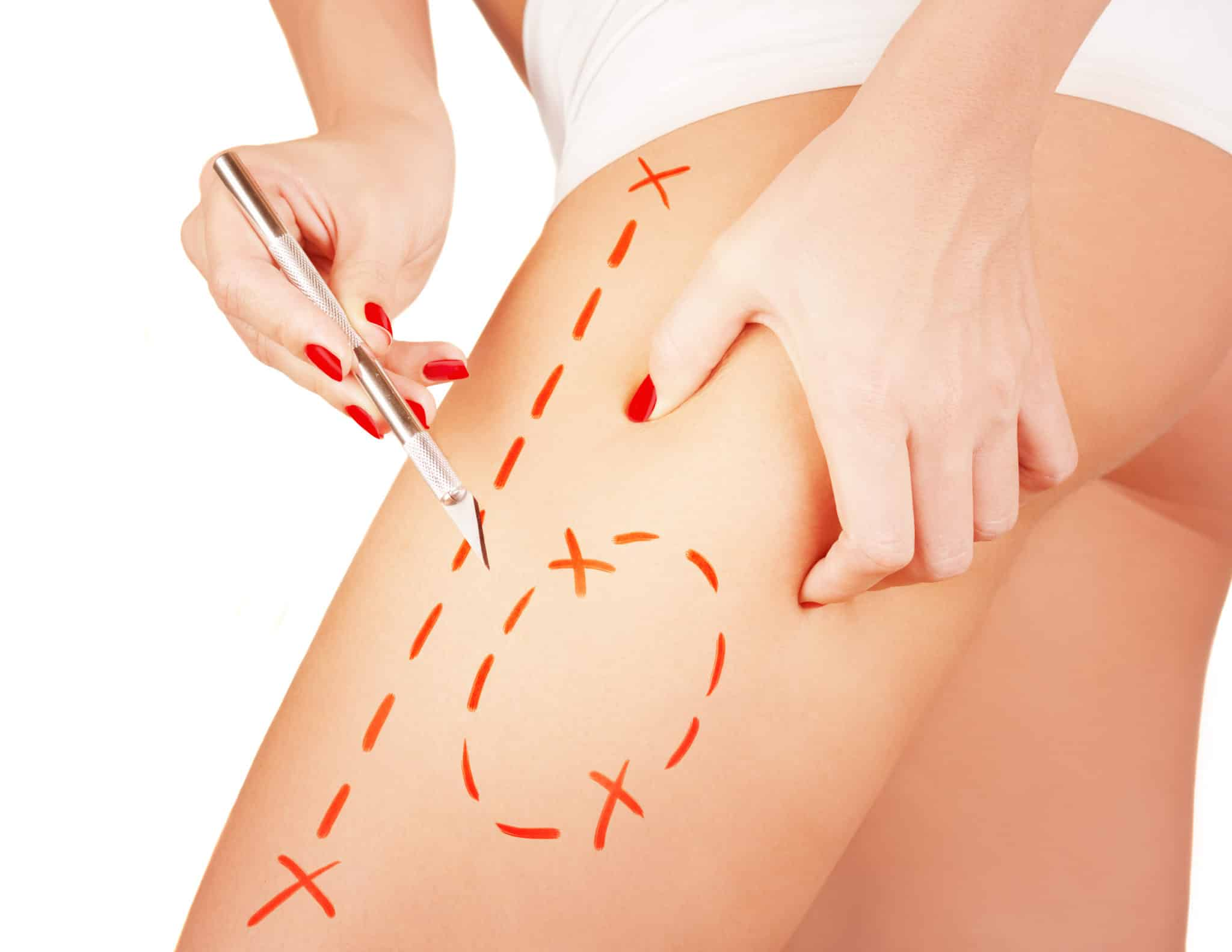 Cellulite Reduction Treatment – How VelaShape is the right solution for you