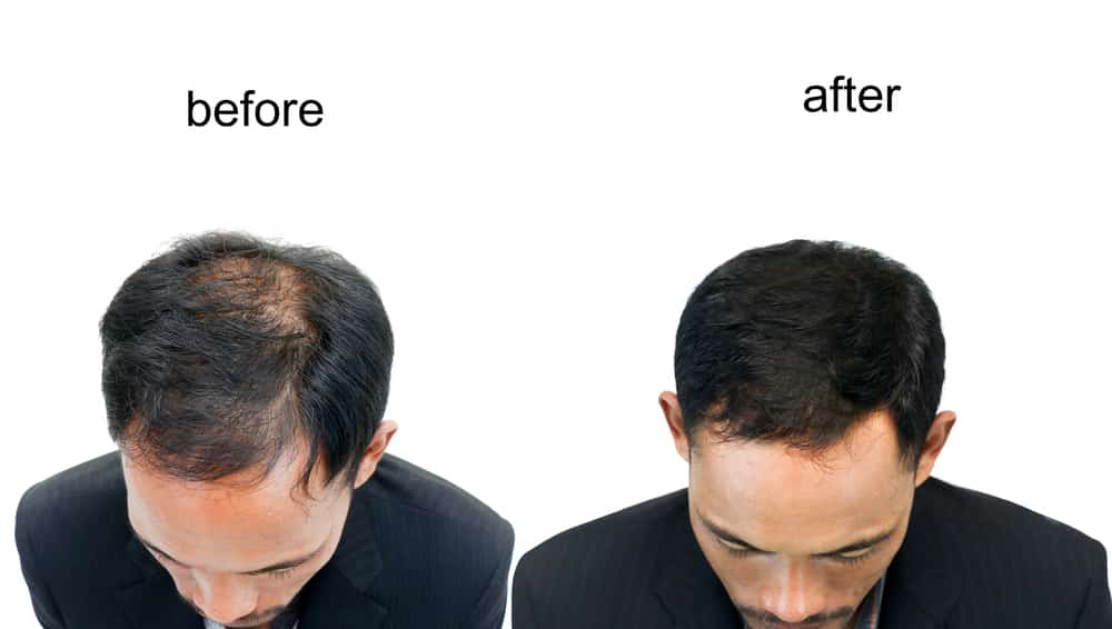 prp hair restoration before after