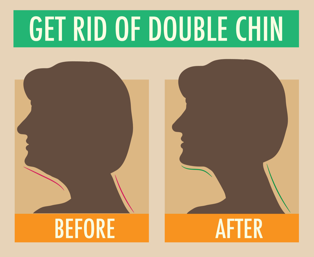 Get-rid-double-chin