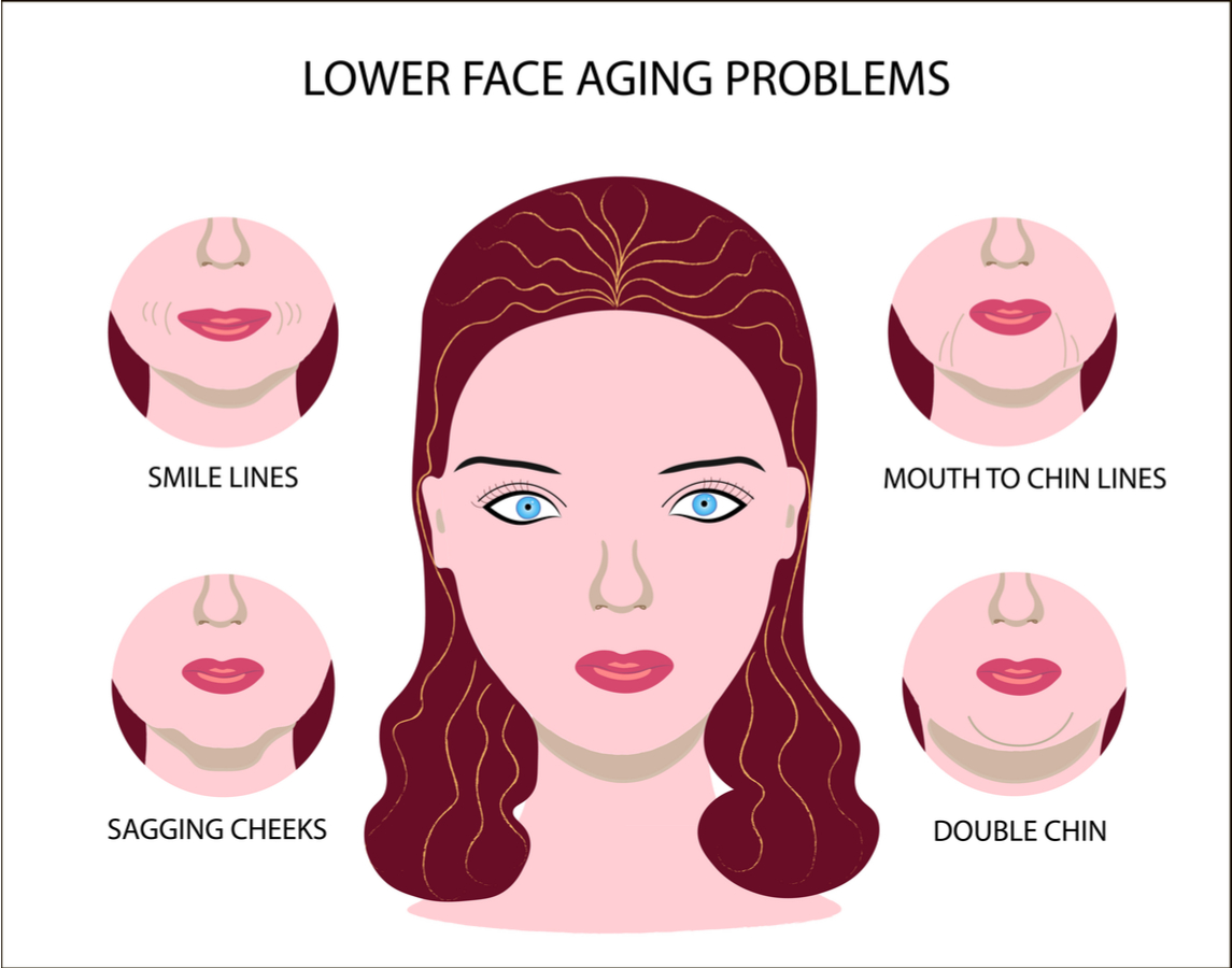 Lower Face Aging Problems