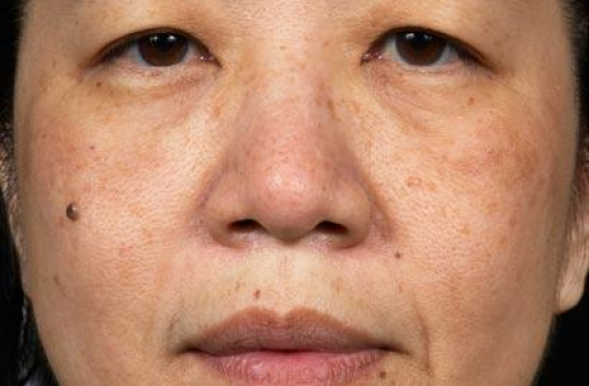 fraxel laser after treatment