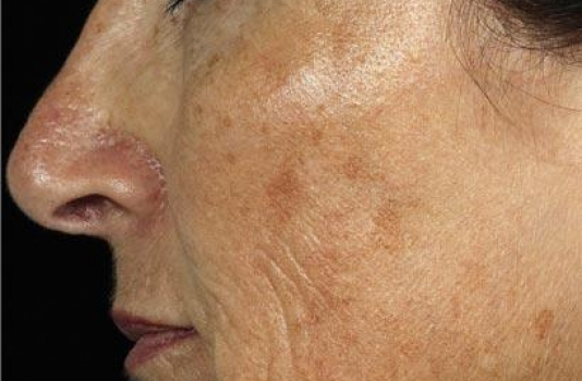 fraxel laser before face