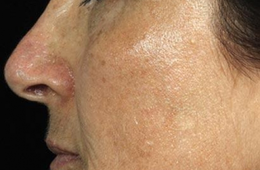 fraxel laser after face