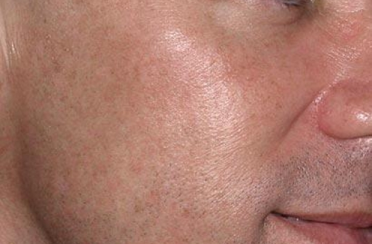 fraxel repair after acne scars