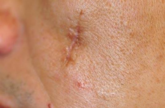 fraxel repair scars before