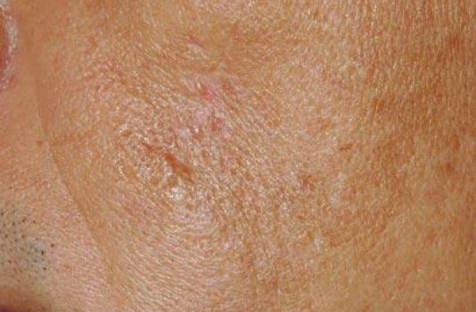 fraxel repair scars after