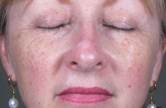 fraxel laser for acne scars before