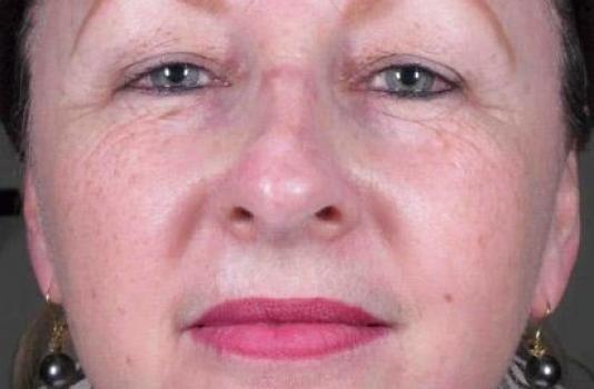fraxel laser for acne scars after