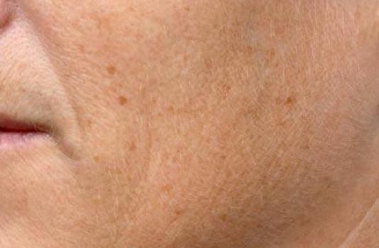 fraxel laser acne scars after