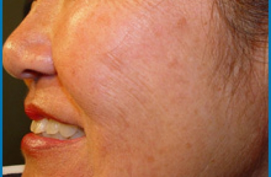 spot on face after Photofacial