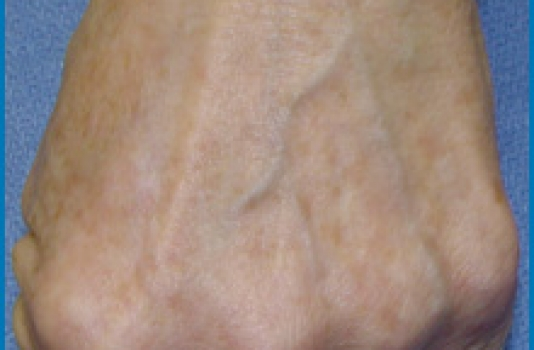 Photofacial after in hand