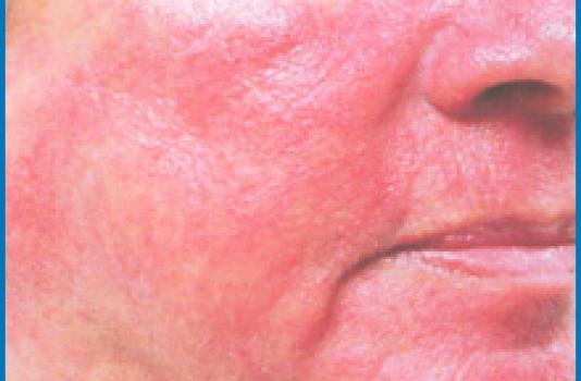 Photofacial before face NY