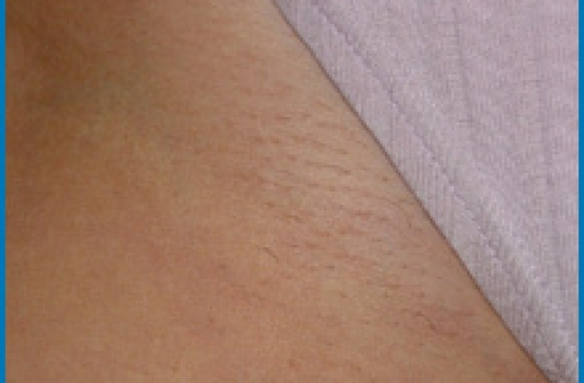 laser hair removal near me