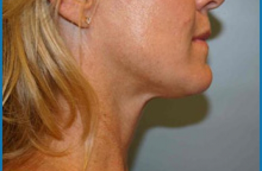 laser for skin tightening before