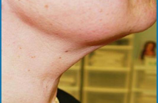 laser skin tightening face