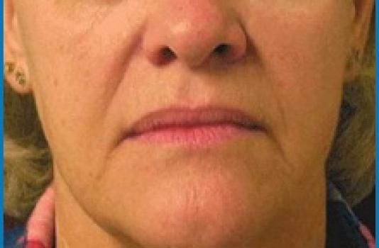 skin tightening laser cost