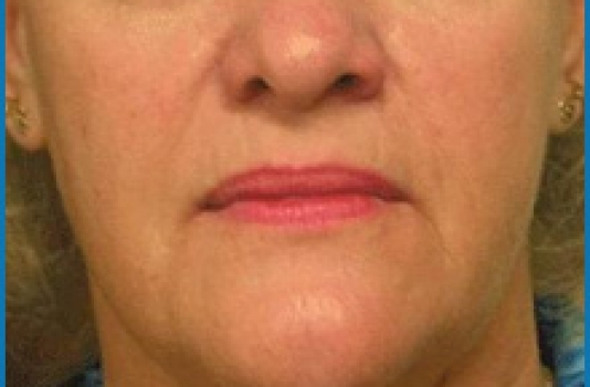 laser to tighten skin under eyes