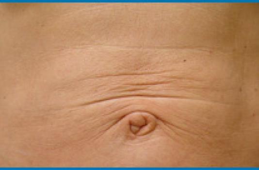 do skin tightening lasers work