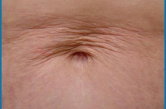 skin tightening laser before