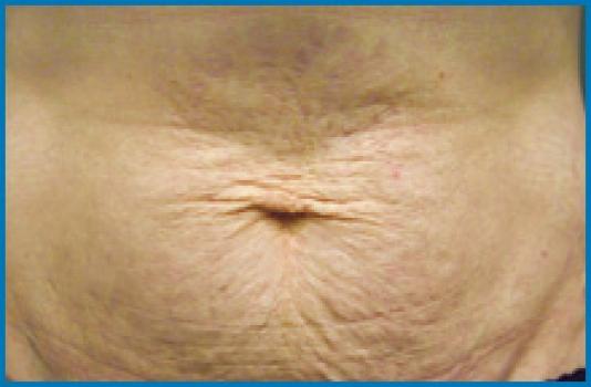 skin tightening laser before NY