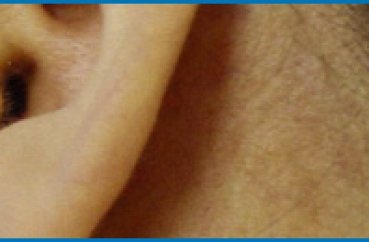 laser spider vein removal cost